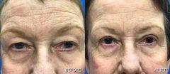 Blepharoplasty - Case 2