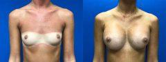 Breast Augmentation - Case 4