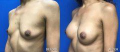 Breast Augmentation - Case 2