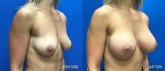 Breast Augmentation - Case 3