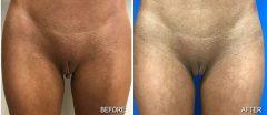 Labiaplasty - Case 2