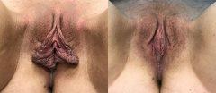 Labiaplasty - Case 5