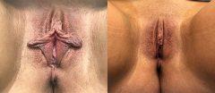 Labiaplasty - Case 7