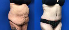 Tummy Tuck - Case 3
