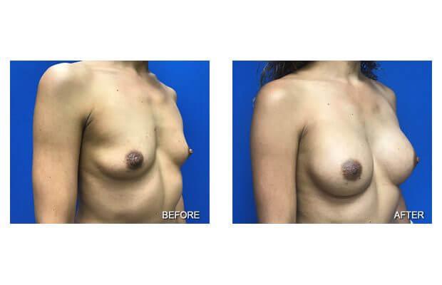 , Breast Augmentation